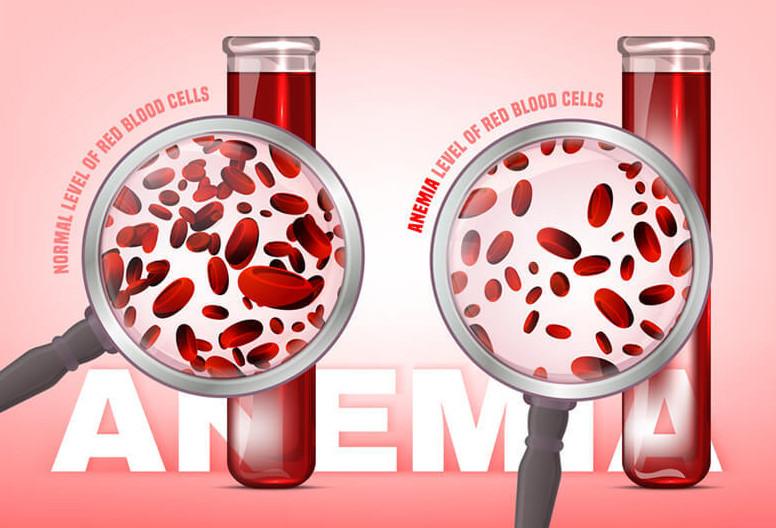 Анемия: Какие продукты нарушают всасывание железа