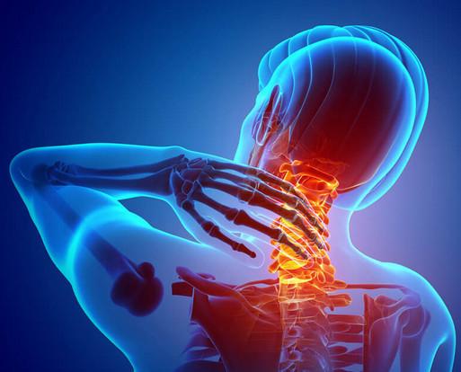 Цервикалгия: Почему болит шея?