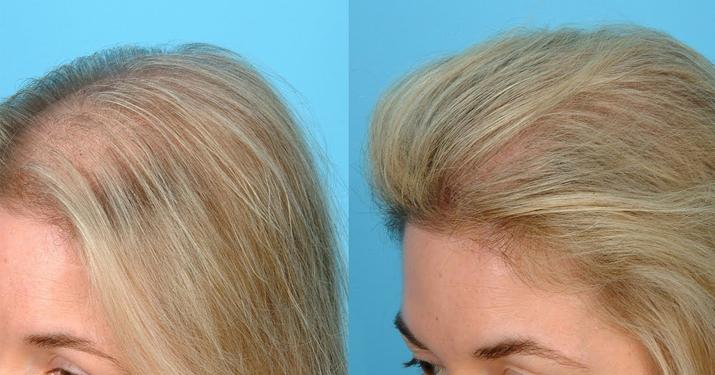 Сильнейшая маска для роста и против выпадения волос
