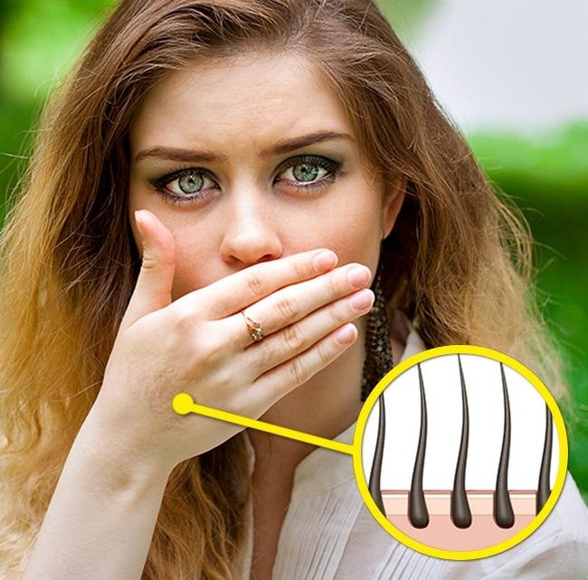 9 симптомов гормонального дисбаланса, которые портят нашу внешность