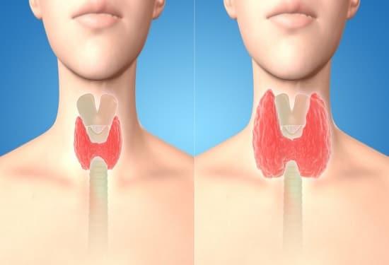 Привести Щитовидку в норму за 8 дней с помощью семян кориандра