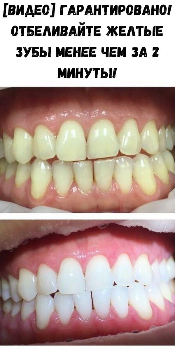 [Видео] Гарантировано! Отбеливайте желтые зубы менее чем за 2 минуты!