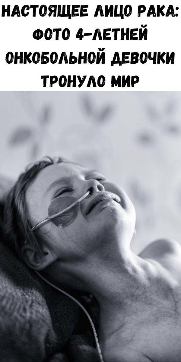 Настоящее лицо рака: фото 4-летней онкобольной девочки тронуло мир