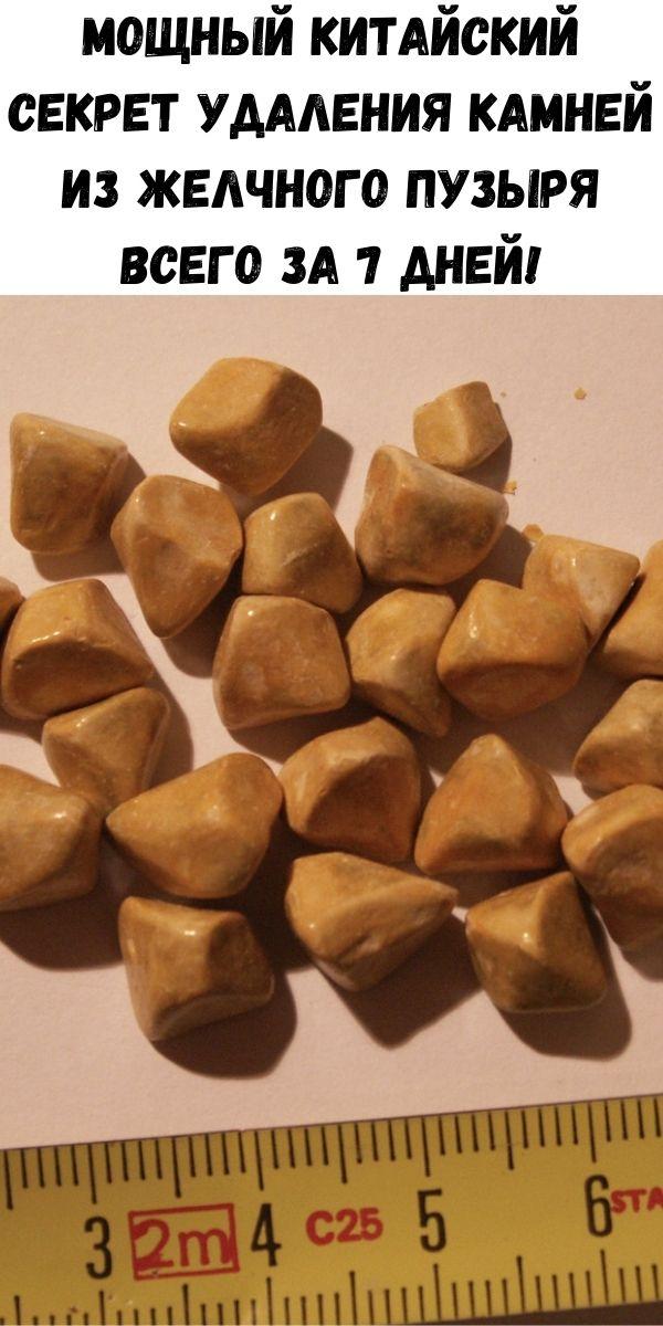 Мощный китайский секрет удаления камней из желчного пузыря всего за 7 дней!