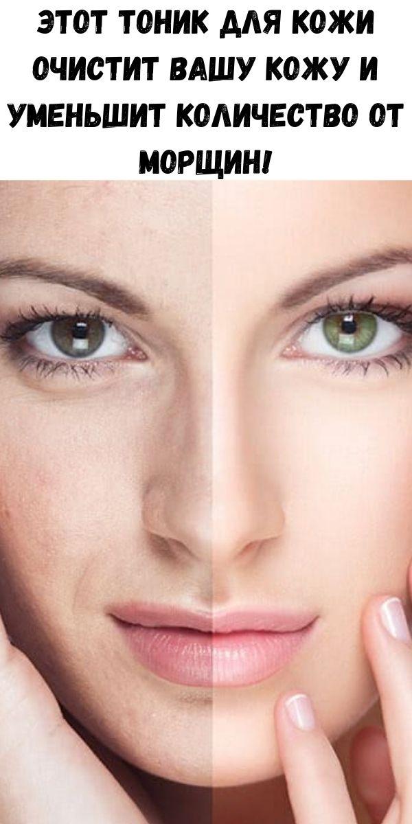 Этот тоник для кожи очистит вашу кожу и уменьшит количество от морщин!