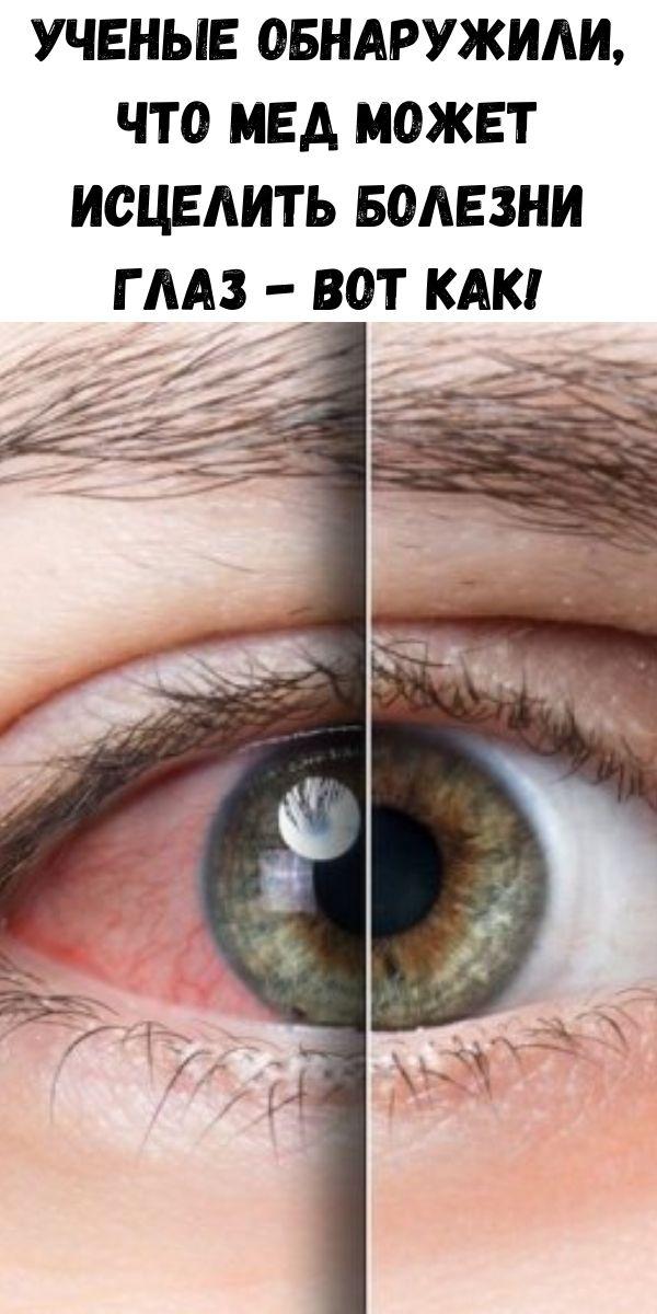 Ученые обнаружили, что мед может исцелить болезни глаз - вот как!