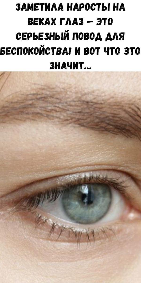 Заметила наросты на веках глаз — это серьезный повод для беспокойства! И вот что это значит…