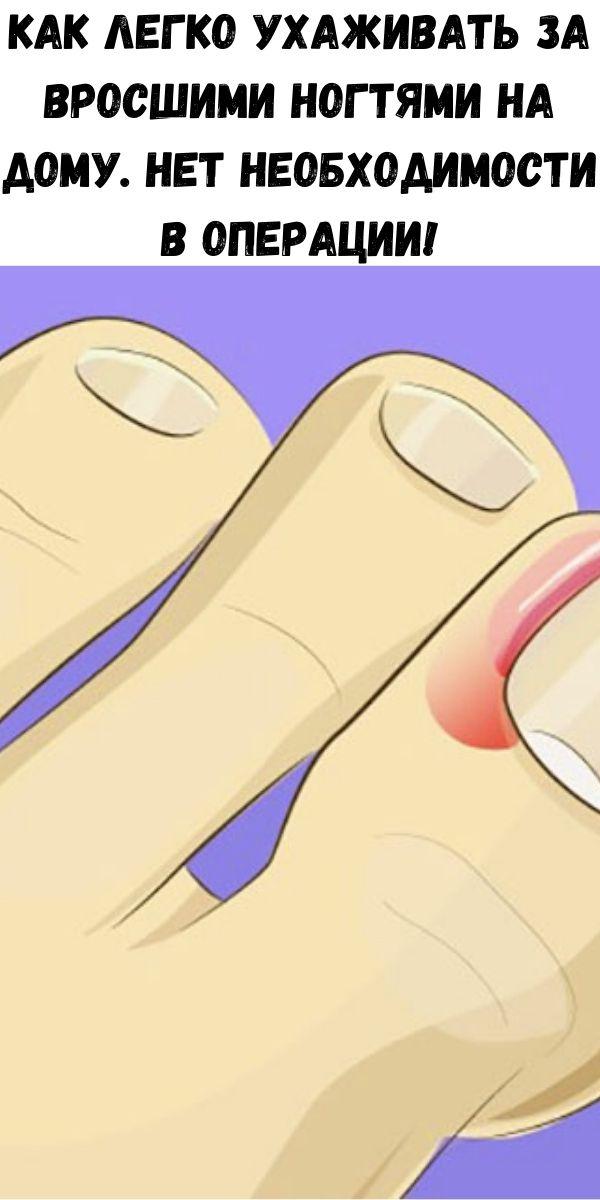 Как легко ухаживать за вросшими ногтями на дому. Нет необходимости в операции!