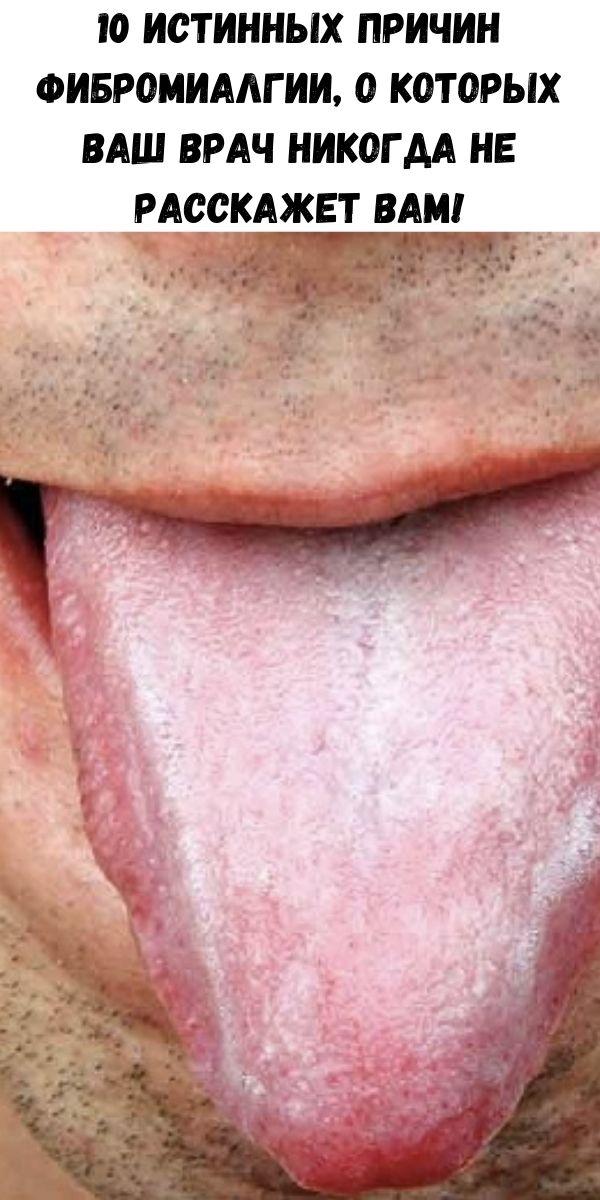 10 истинных причин фибромиалгии, о которых ваш врач никогда не расскажет вам!