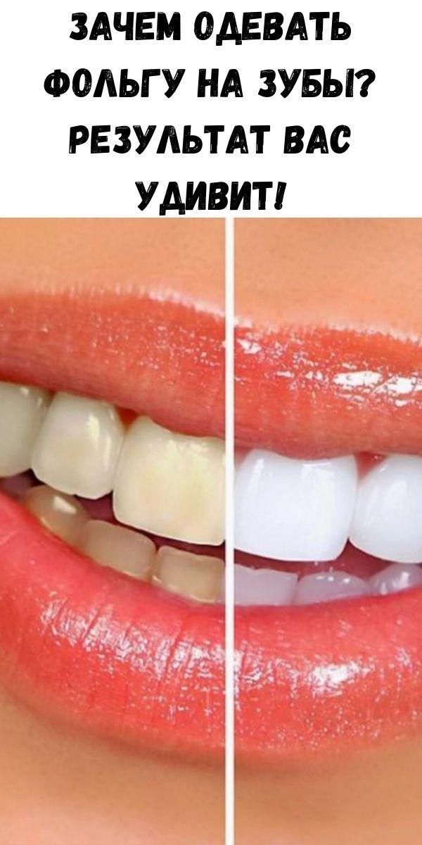 Зачем одевать фольгу на зубы? Результат Вас удивит!
