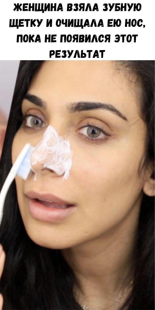 Женщина взяла зубную щетку и очищала ею нос, пока не появился этот результат