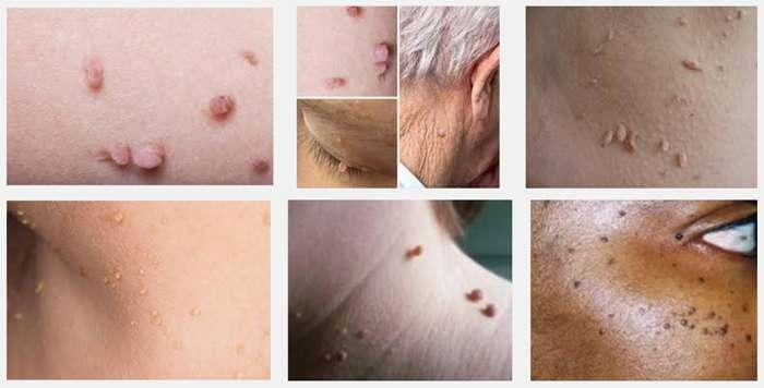 Как естественным образом избавиться от кожных фибром, родинок, бородавок, угрей и возрастных пятен!