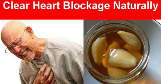 Самая мощная лимонно-чесночная смесь для очистки ваших артерий и предотвращения сердечных приступов