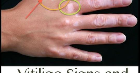 Витилиго: признаки и симптомы