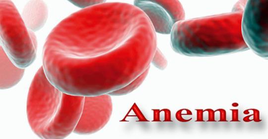 Симптомы анемии: 5 лучших домашних средств для лечения анемии