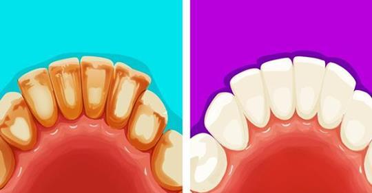 Избавьтесь от зубного камня естественным способом с помощью этих 6 эффективных способов!