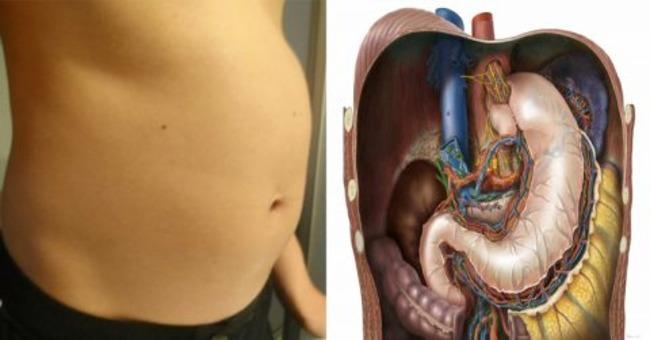 Токсины, хранящиеся в ваших жировых клетках, делают вас жирными и опухшими