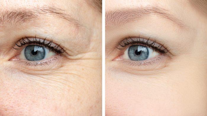 Благодаря этим 4 маслам морщины вокруг глаз разглаживаются: просто попробуйте!