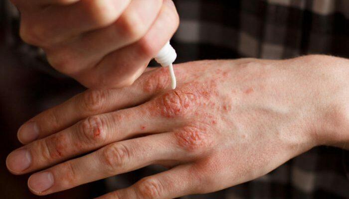 Натуральные кремы для лечения псориаза: попробуйте эти рецепты!