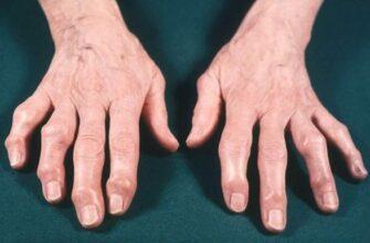 Бесценные рекомендации восточной медицины при артритах и артрозах