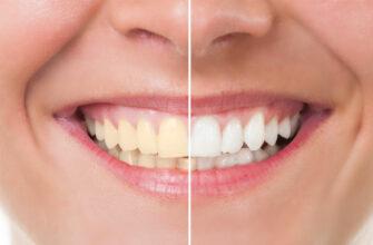 Как избавиться от зубного камня и отбелить потемневшую эмаль