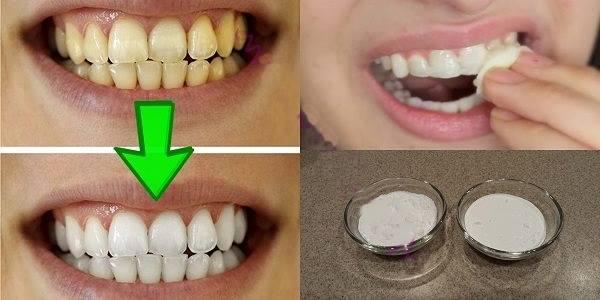Гарантированное отбеливание желтых зубов менее чем за 2 минуты!